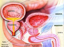 cancro prostata crioterapia