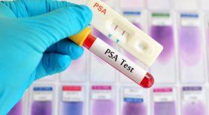 Come interpretare il PSA Test