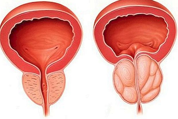 Fájl:Benign Prostatic Hyperplasia nci-voljpg – Wikipédia